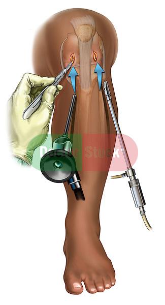 Arthroscopic Knee Portals; depicts the creation of arthroscopic knee portals in the knee