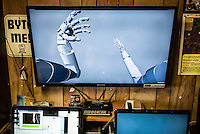 A screen shows the Virtual Reality system that Les Baugh has at home with which he practices mind control techniques for using the experiemental  prosthetic arms being developed by John Hopkins Applied Physics Lab. Baugh lost both his arms at the shoulder in a freak electrical accident 40 years ago. Since then, he has managed life mostly without the help of prosthetic arms, which he finds to be more of an uncomfortable nuisance than a help. In 2013, Les underwent a state of the art surgery called Targeted Muscle Reinnervation, where the bundle of nerves at the stump of his shoulders were remapped to his pectoralis muscles. After he recovered from surgery, researchers at Johns Hopkins Applied Physics Lab fitted him with two robotic arms, called the MPL or Modular Prosthetic Limb, and he was able to manipulate objects with his hands, just by thinking about it. The MPL is a state of the art prototype, and not ready for take-home, so Baugh has been practicing mind control at home in rural Walden using a virtual reality game paired with less advanced prosthetic limbs. At a later stage the researchers at Johns Hopkins hope to get Les to try more advanced versions of the MPL  in the hope that his remapped nerves will have grown deeper into his pecs and he'll be able to manipulate the arms more effectively.