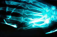 X-ray of a compound fracture of the hand. This image may only be used to portray the subject in a positive manner..©shoutpictures.com..john@shoutpictures.com