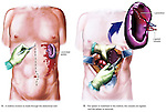 Spleen Removal (Splenectomy). This exhibit illustrates the splenecomy procedure in which the spleen is removed. The first image shows the midline incision in the abdomen through wich the damaged spleen is exposed. The second image depicts the mobilization of the lacerated spleen and ligation (binding) of the the splenic vessels which will be clipped. An enlargement of the removed spleen is pictured off to the side to highlight the specific injuries.