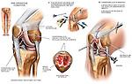 Knee Surgery - Chondromalacia with Arthroscopic Repairs. Shows severe patellar chondromalacia (osteochondritis) with subsequent surgery.