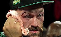 Fury vs Wallin Fight 091419