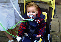 Pictured: Alan Gifford when he was 3 years old after he lost his hands. Friday 18 August 2017<br /> Re: 11 year old Alan Gifford who has two prosthetic arms, Loughor near Swansea, Wales, UK.