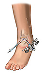 Arthroscopic instrument placement in the ankle joint and debridement of soft tissue overgrowth and cartilage tear