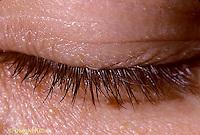 SN37-001b  Human eyelashes