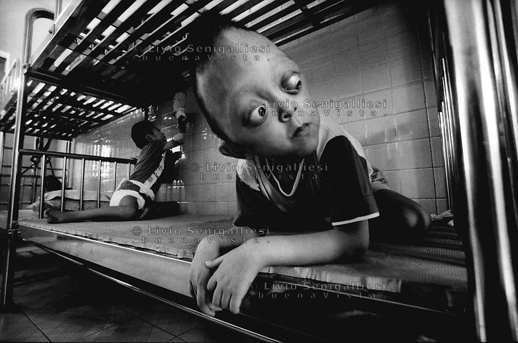 Ho Chi Minh City / Vietnam.<br /> Tu Du Hospital, centro per l'assistenza e la cura dei bambini nati con gravi malformazioni a causa dell'Agent Orange.In primo piano il piccolo Huynh Hung. Abbandonato dalla famiglia a causa delle gravi malformazioni dovute alle sindrome da diossina, vive con decine di altri piccoli pazienti nel reparto 'lungo-degenti'.<br /> Foto Livio Senigalliesi.<br /> Tu Du Hospital - Ho Chi Minh City / Vietnam.In the picture Huynh Hung. Most of children born with physical deformities and mental diseases are abandoned by the families.<br /> Photo Livio Senigalliesi