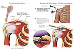 Shoulder Impingement Syndrome with Arthroscopic Surgery.