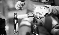 111th Paris-Roubaix 2013..post-race fingers.
