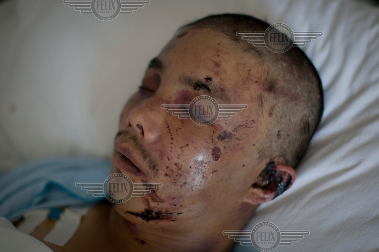 A Han Chinese man who was badly beaten by a Uighur mob recovers in Number 2 Hospital in Urumqi. Ethnic violence between the Uighur and Han Chinese erupted in the city a few days earlier..