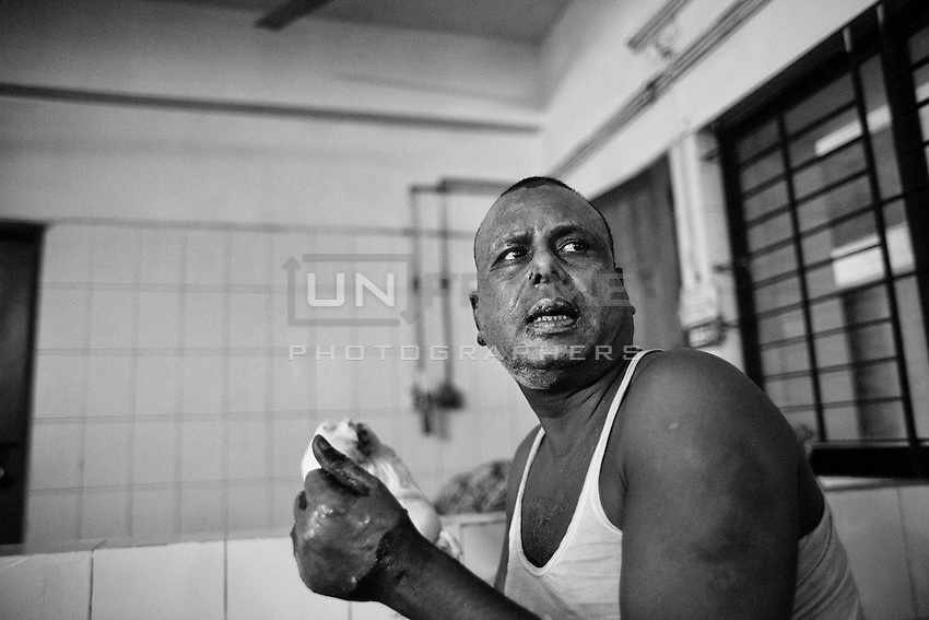 Police officer Abul Kalam Azad, 40, 14 percent of his body burnt on the election day (5th January 2013) when they were carrying ballot boxes from a polling centre in Gobindaganj, Gaibandha. Dhaka, Bangladesh