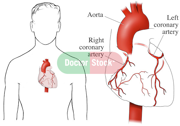 This medical exhibit depicts the coronary arteries (arteries of the heart with two images. The first image shows the heart within a male outline. The second image shows the heart by itself from an anterior (front) view in which only the arteries are in color (red). Labels identify the aorta, right coronary artery, and left coronary artery.