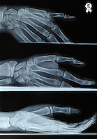 X-ray image of boy's (13) right hand (Licence this image exclusively with Getty: http://www.gettyimages.com/detail/97659141 )