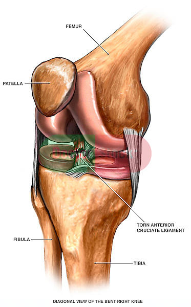 This illustration depicts a torn ACL (anterior cruciate ligament) injury in the knee joint.
