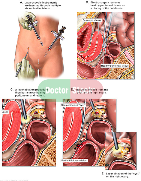 Ovarian Cyst - Laparoscopic Surgery. This full color custom medical exhibit depicts the laparoscopic procedure performed to remove a cyst from the right ovary. The surgery starts with the insertion o trocars into the female abdomen. Three sagittal views follow showing biopsy of peritoneal tissue, laser ablation to gain access to the right ovary and removal of the ovarian cyst. This particular surgery shows that a defect is created in the rectal wall in the process of gaining access to the ovary.