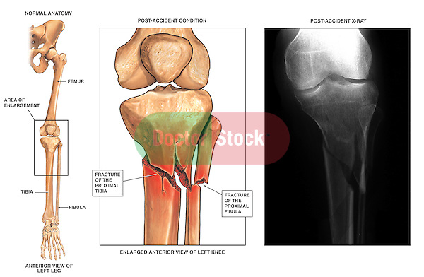 Fractured (Broken) Lower Leg with Radiographic View. Accurately depicts post-accident left leg fractures to the proximal lower leg just below the level of the knee. It features an overview of the bones of the lower extremity identifying the fracture location, a detail of the knee joint and fracture and a final matching film print of the actual fracture.