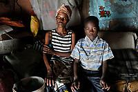 ZAMBIA, copperbelt, town Ndola, woman Anna Mulonga 47 years with HIV aids and skin infection and her son Boyd / SAMBIA Ndola im Copperbelt, township Nkwazig, Anna Mulonga, sie ist an Aids HIV erkrankt und hatte eine Infektion, die Auge und Gesicht zerstoert haben, und ihr Sohn Boyd