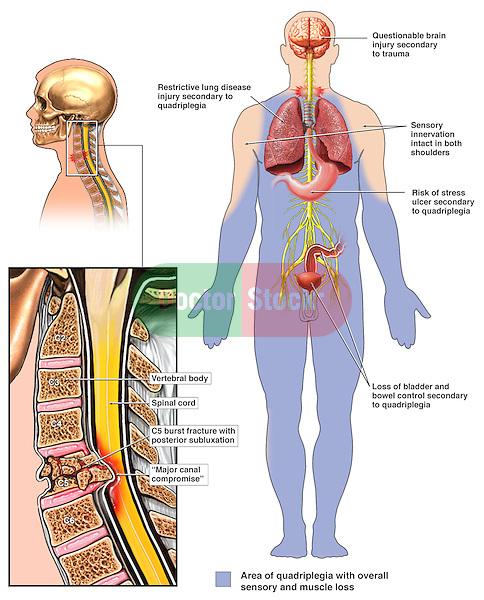 C5 Fracture Subluxation with Quadriplegia showing paralysis.