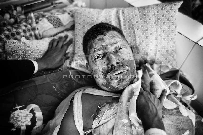 25 years old Truck helper Md. Majedul at Dhaka Medical College Hospital Burn Unit. 90 precent of his body burnt when supportes of nationwide strike torched his truck on 21 December 2013. Dhaka, Bangladesh