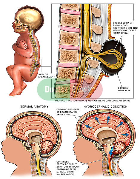 Congenital Birth Defects - Spina Bifida, Hydrocephalus and Arnold-Chiari Malformation. Graphically depicts cauda equina of the spinal cord herniating into a meningomyelocele (spina bifida). Also shows increase intracranial pressure from excess cerebrospinal fluid causing hydrocephalus (water on the brain) and the herniation of the brain through the base of the skull at the foramen magnum (Arnold-Chiari Malformation).