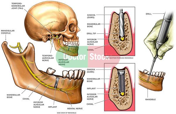 Inferior Alveloar Nerve Injury from Dental Drill