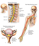 Spinal Cord Injury - C5-6 Disc Herniation with Chronic Pain. Depicts the injury and pain associated with a cervical disc herniation involving spinal cord and nerve root impingement. Shows an impulse traveling out of the neck, through the brachial plexus and radiating pain down into the arm and hand.
