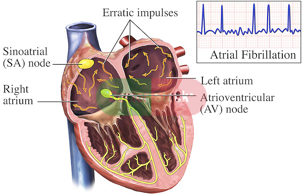 This medical exhibit depicts the electrical system of the heart (cardiac conduction system) during an atrial fibrillation (heart attack).  It includes a graphical representation of the EKG (ECG) showing the electrical impulses illustrated within the heart.