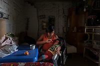 2015-03-04. UN ÁNGEL CON LAS ALAS PEGADAS. © Calamar2/Susana HIDALGO & Pedro ARMESTRE<br />  Evelyn, de 14 años, da la comida a su hermano Ángel César el día que regresa a casa tras la intervención médica. <br />    Ángel César Alonso, de 10 meses, nació por cesárea en Chiclayo (Perú) y los médicos le diagnosticaron síndrome de Apert, una enfermedad genética que afecta a la forma de la cabeza y que hace que el pequeño tenga los ojos abultados y padezca sindactilia (los dedos de las manos y de los pies pegados). El síndrome de Apert es una de las 7.000 enfermedades raras que existen en el mundo y su prevalencia oscila entre 1 y 6 casos por cada 100.000 nacimientos. La historia de este bebé es la historia de unos padres coraje, César Cruz y Edita Jiménez, que se desviven para que el pequeño pueda tener la mejor calidad de vida posible. César y Edita acudieron el pasado mes de marzo junto a su bebé al hospital San Juan de Dios, en Chiclayo, al reclamo de una campaña solidaria de intervenciones quirúrgicas organizadas por la Sociedad Española de Cirugía Plástica, Reparadora y Estética (Secpre) y la ONG Juan Ciudad. Los cirujanos españoles le operaron las manos para separar unos dedos de otros. La intervención duró aproximadamente una hora y media y el pequeño necesitó de curas posteriores.<br /> La operación fue el primer paso en la mejora de la salud de Ángel. Necesitará al menos otra más para separar los dedos de los pies. Sus padres son humildes y apenas tienen recursos.  César, el padre, trabaja levantando casas de adobe. Edita, la madre, vive para su hijo y le gustaría en un futuro retomar su profesión de enfermera. © Calamar2/Pedro ARMESTRE<br /> <br />  AN ANGEL WITH THE WINGS ATTACHED. © Calamar2/Susana HIDALGO & Pedro ARMESTRE<br /> <br /> Angel César Alonso was born in Chiclayo (Peru) and was diagnosed with Apert syndrome, a genetic disease that affects the shape of the head and makes him having eyes bulging and suffering syndactyly (the fingers and feet fl