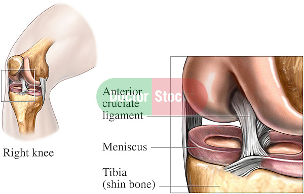 This medical exhibit depicts the anatomy of the anterior cruciate ligament (ACL) in the knee joint.  Also labeled are the meniscus and the tibia (shin bone).