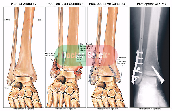Bimalleolar Fractured Ankle and Subsequent Fixation Surgery with Plates and Screws.