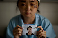 24 year old Dong Yuanyuan holds a photograph of her missing husband as she recovers in the Number 2 Hospital in Urumqi. She is an air stewardess teacher who was beaten up with her husband on a bus and left unconscious by a Uighur mob. She is now meant to be on her honeymoon with her husband, who has been missing since they were attacked and beaten. Ethnic violence between the Uighur and Han Chinese erupted in the city a few days earlier..