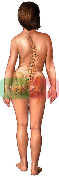 This full color medical illustration depicts a posterior (back) view of an adolescent white female exhibiting a classic s-pattern scoliosis of the spine. The young girl's back and pelvic bones appear ghosted within the torso clearly illustrating an abnormal lateral (to the sides) curvature (deviation) of the vertebral column. This image is intentionally left unlabeled to accommodate custom label requests.
