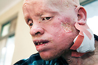 An albino man is treated for skin cancer, the biggest killer of albinos in Africa, at Dar Es Salaam's Cancer Institute. Discrimination against albinos is a serious problem throughout sub-Saharan Africa, but recently in Tanzania albinos have been killed and mutilated, victims of a growing criminal trade in albino body parts fuelled by superstition and greed. Limbs, skin, hair, genitals and blood are believed by witch doctors to bring good luck, and are sold to clients for large sums of money, carrying with them the promise of instant wealth.