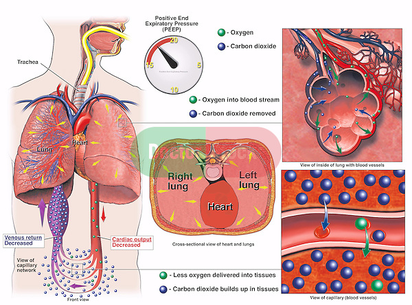 This medical exhibit describes the circulatory system impaired by a positive end expiratory pressure (PEEP) value over 15. The illustration consists of five images. The first image is a schematic diagram of the respiratory system and vascular network. The second image is a schematic of a PEEP reading. The third image is a transverse section through the thorax. The fourth image is a microscopic view of alveoli. The fifth image is a microscopic view of a blood vessel.