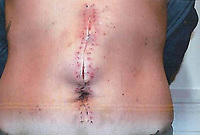 Pictured: The stab wounds suffered by Kayleigh Evans<br /> Re: Ashley Vaughan, 33 has been jailed for 13 years by Cardiff Crown Court, for stabbing his girlfriend Kayleigh Evans, 29 as she  watched television on the sofa at their home in the Tylorstown area of Ferndale, Rhondda Cynon Taff.