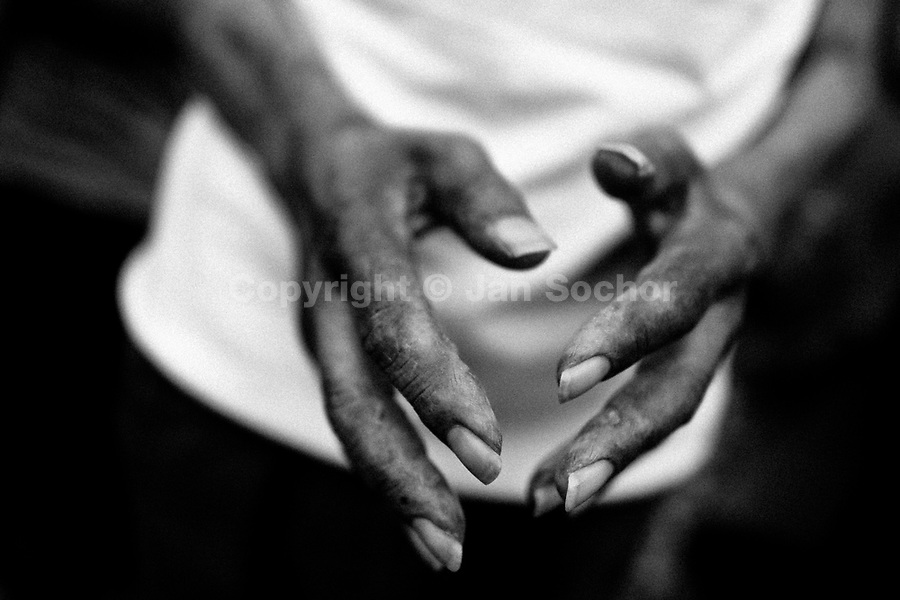 A Colombian man, having a skin rash disease, prays during the religious healing ritual performed at a house church in Bogota, Colombia, 28 January 2013. Hundreds of Christian belivers, joined in nameless groups, gather every week in unmarked home churches dispersed in the city outskirts, to carry out prayers of liberation and exorcism. Community members and their religious activities are usually conducted by a charismatic pastor or preacher. Using either non-contactive methods (reading religous formulas from bible, displaying Christian symbols and icons) or rough body-pressure-points techniques and forced burping, a leading pastor commands the supposed evil spirit, which is generally believed to come from witchcraft, to depart a person's mind and body. The demon's expulsion often consists of multiple rites and may last for several months.