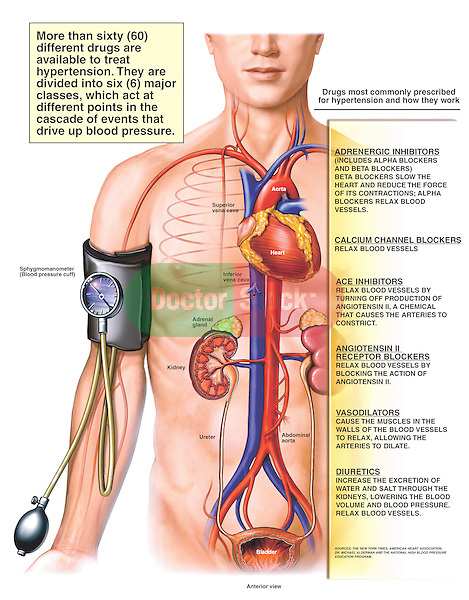 Treatments for Hypertension (High Blood Pressure).