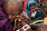 Somalia_Famine_drought_2017