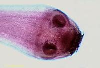 1Y04-013x  Tapeworm - Scolex head and segments - Platyhelminthes - Flatworm parasite - Taenia spp.