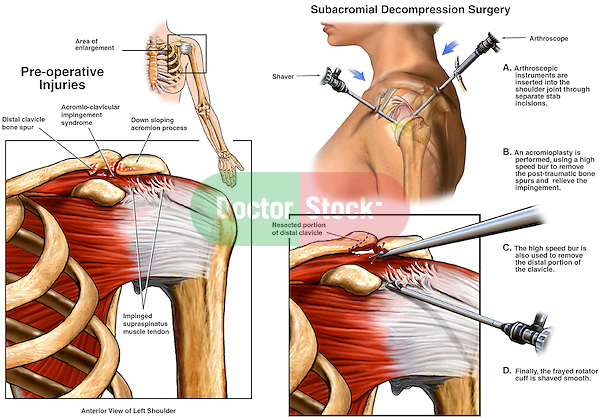 Left Shoulder Impingement Syndrome wih Arthroscopic Surgery.