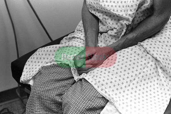 Close-up of patient's clasped hands on lap; waiting, nervous, anxious Patient wearing johnnie or hospital gown