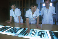 Dr Zhang Yi Qing (center) of a Guangzhou hospital shows x-rays of a previous operation showing the increase in leg length. He indicated with his ruler where the leg has been stretched and where the bone will re-generate...PHOTO BY SINOPIX