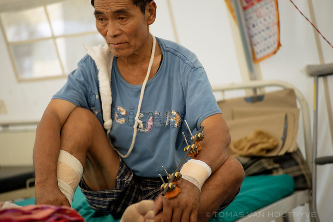 Dhan Sing Gurung sits in a temporary tent at the Gorkha District Hospital in Gorkha Bazaar, Nepal in June 2015. Gurung was tending his livestock when the earthquake hit. He was caught up in a landslide which severely injured his arm and leg. He managed to crawl into a cave which was protected from the slide's path. He was stuck in the cave without food or water for three days before he was able to call out to local villagers to be rescued. Gurung was enrolled in International Medical Corps' newly-opened physical therapy and rehabilitation program.