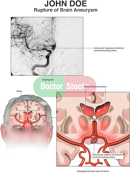 This medical exhibit features an interpretation of a brain angiogram depicting the rupture of an aneurysm and cerebral hemorrhage (bleeding) in the anterior communicating artery of the Circle of Willis.