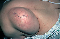 Massive lipoma on the back. A lipoma is a benign tumour consisting of mature fat cells. Also called an adipose tumour. This image may only be used to portray the subject in a positive manner..©shoutpictures.com..john@shoutpictures.com