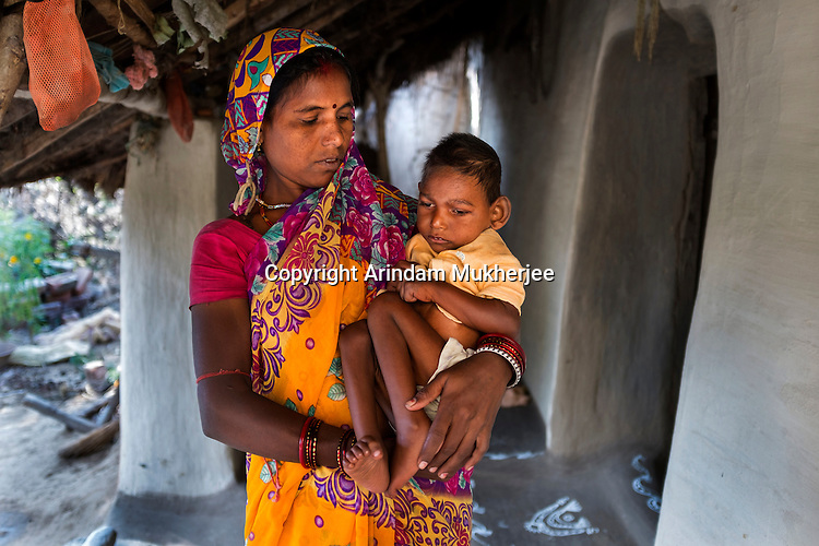 Sangeeta Gope with her five-year-old son Suraj at their home in Rondih village. Suraj cannot walk, see, hear or speak. He has periodic seizures since birth. He has to be kept on a liquid diet.