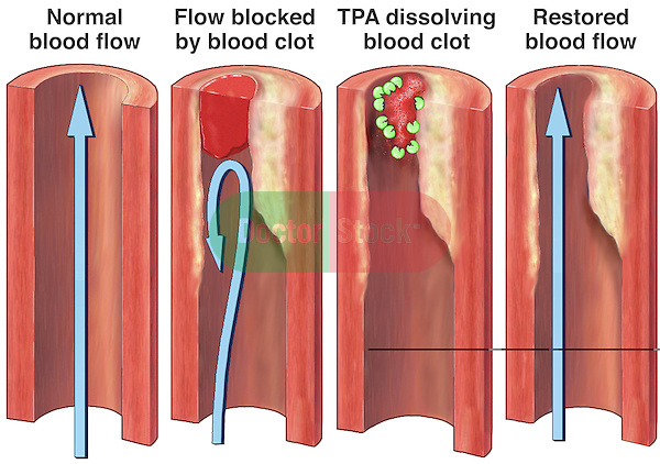 TPA Dissolving Blood Clot. This medical exhibit depicts normal blood flow within a vessel as well as a blocked blood vessel blocked by a blood clot. It shows TPA (Tissue Plasminogen Activator) dissolving the blood clot and restoring normal blood flow in the artery.