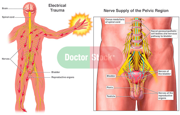 Electrical Shock Injury Affecting the Male Urogenital System Organs (Genitalia). Dramatic depiction showing pathway of electricity through nerves to the pelvis which negatively impact the function of the urinary bladder and reproductive organs.