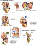 Knee Surgery - Torn Anterior Cruciate Ligament (ACL) and Medial Meniscus with Repairs