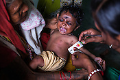 A health worker checks the MUAC of a child during a mass screening at the local health centre in Inarwa in Saptari, Nepal.