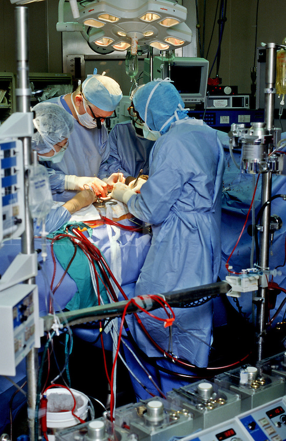 Heart surgery team works on patient during operation at central Ohio (USA) hospital. Operating room.